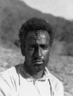 Abyssinia, wounded tent boy