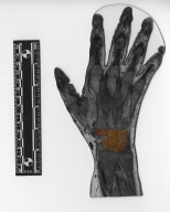 Cross section of human hand