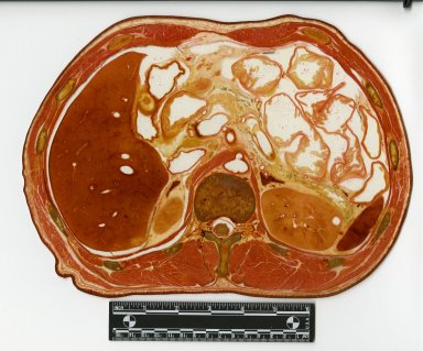 Cross section at liver