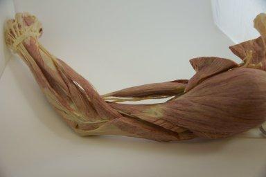 Human Plastinated Arm and Shoulder