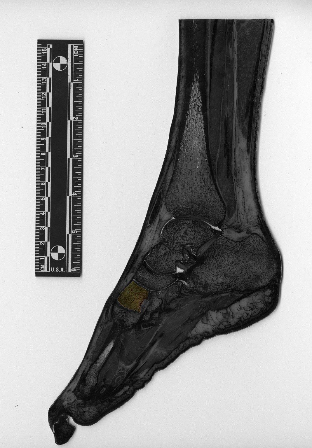 Plastinated human foot