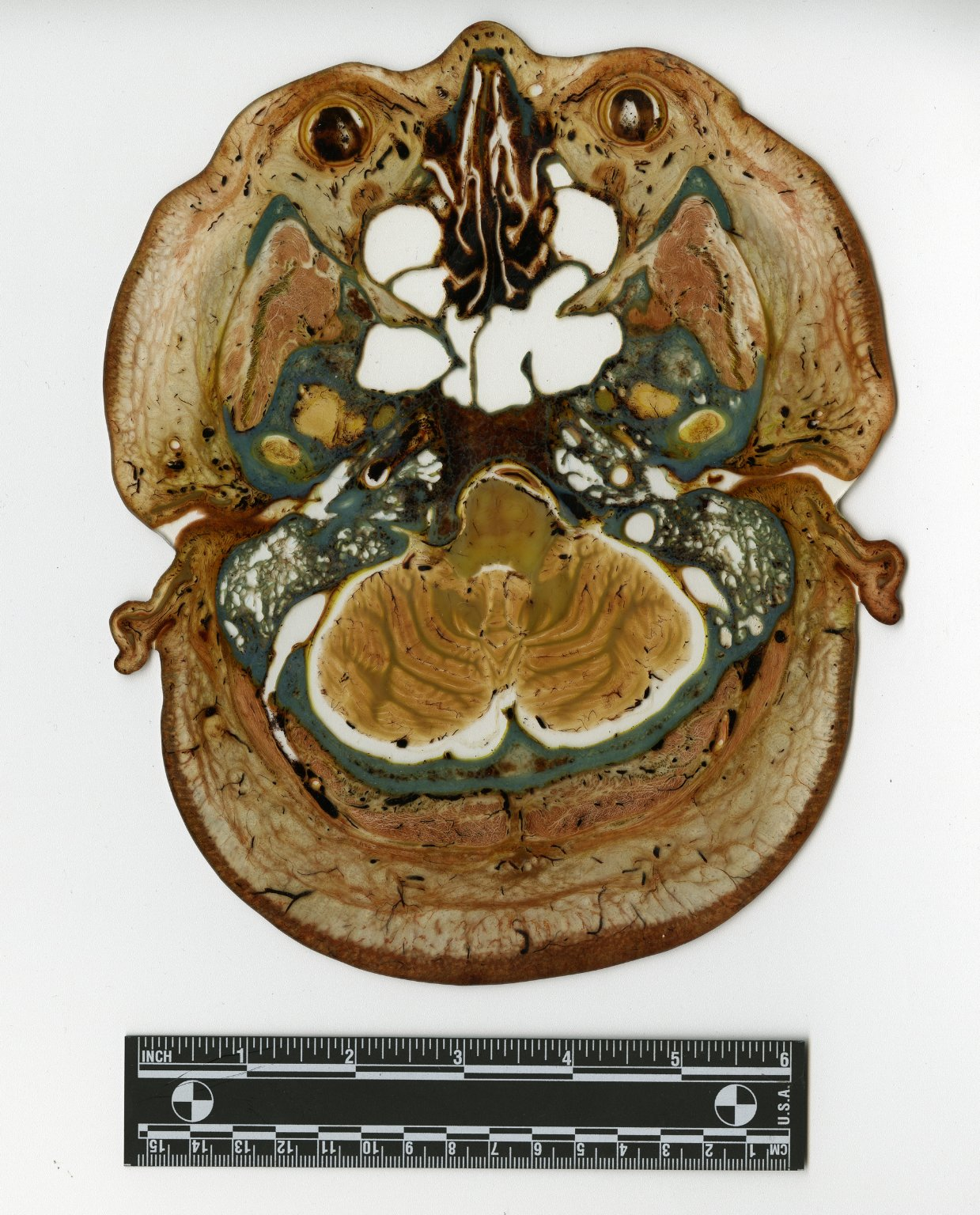 Cross section at head