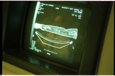 Computer screens during CT scan of cat mummy