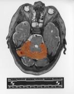 Slice of human skull and brain