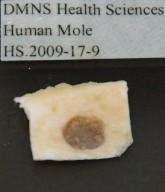 Human Mole