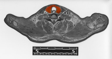 Cross section at shoulders