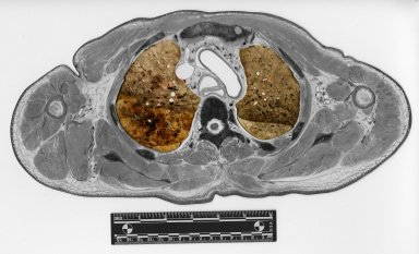 Cross section at superior lungs