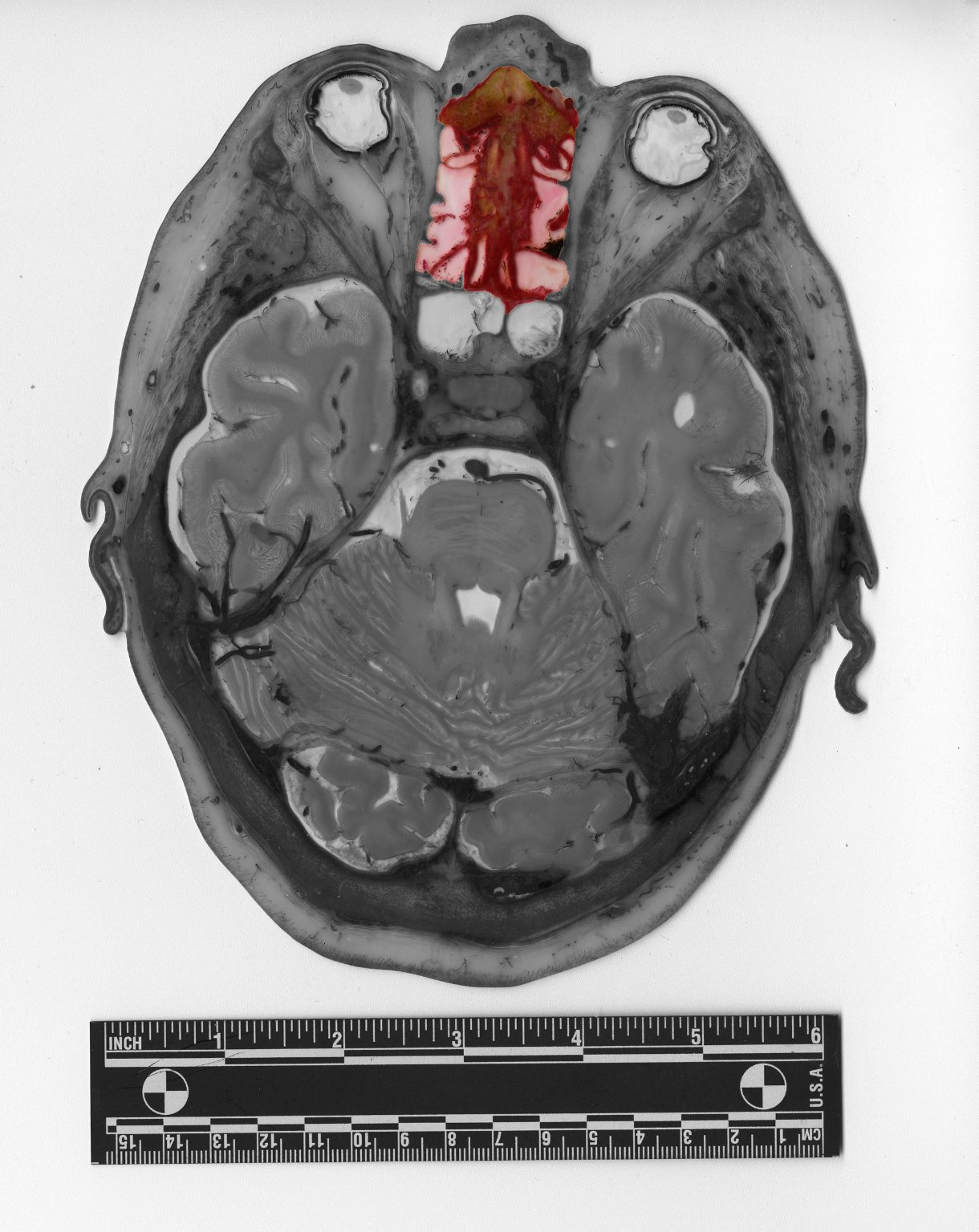 Slice of human skull and brain