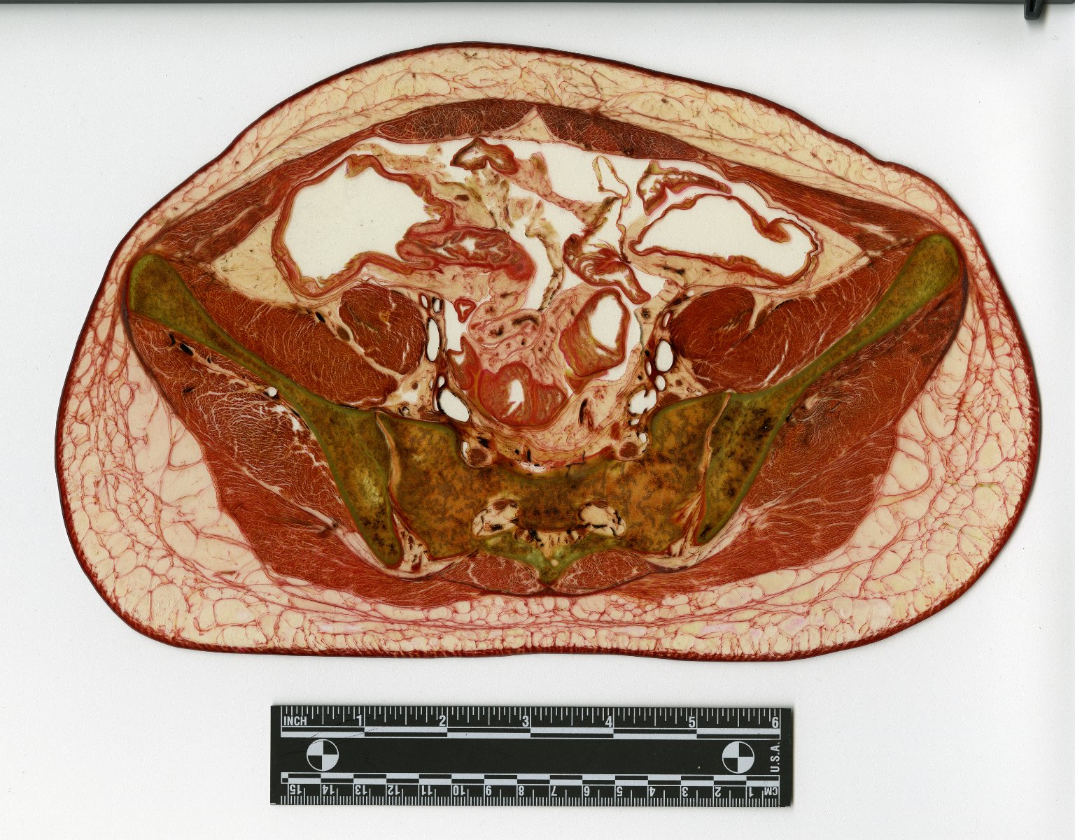 Cross section at sacrum and pelvis